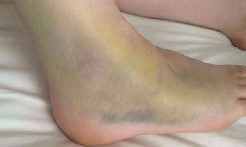 sprained-ankle-bruising